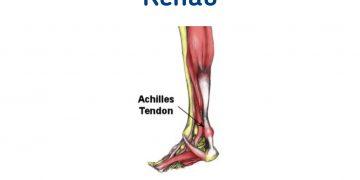 Achilles Tendinitis rehabilitation.
