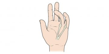 Do you suffer from Dupuytren's Contracture?