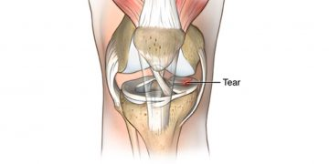 Do you have a torn meniscus?