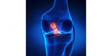Do you have an ACL tear?