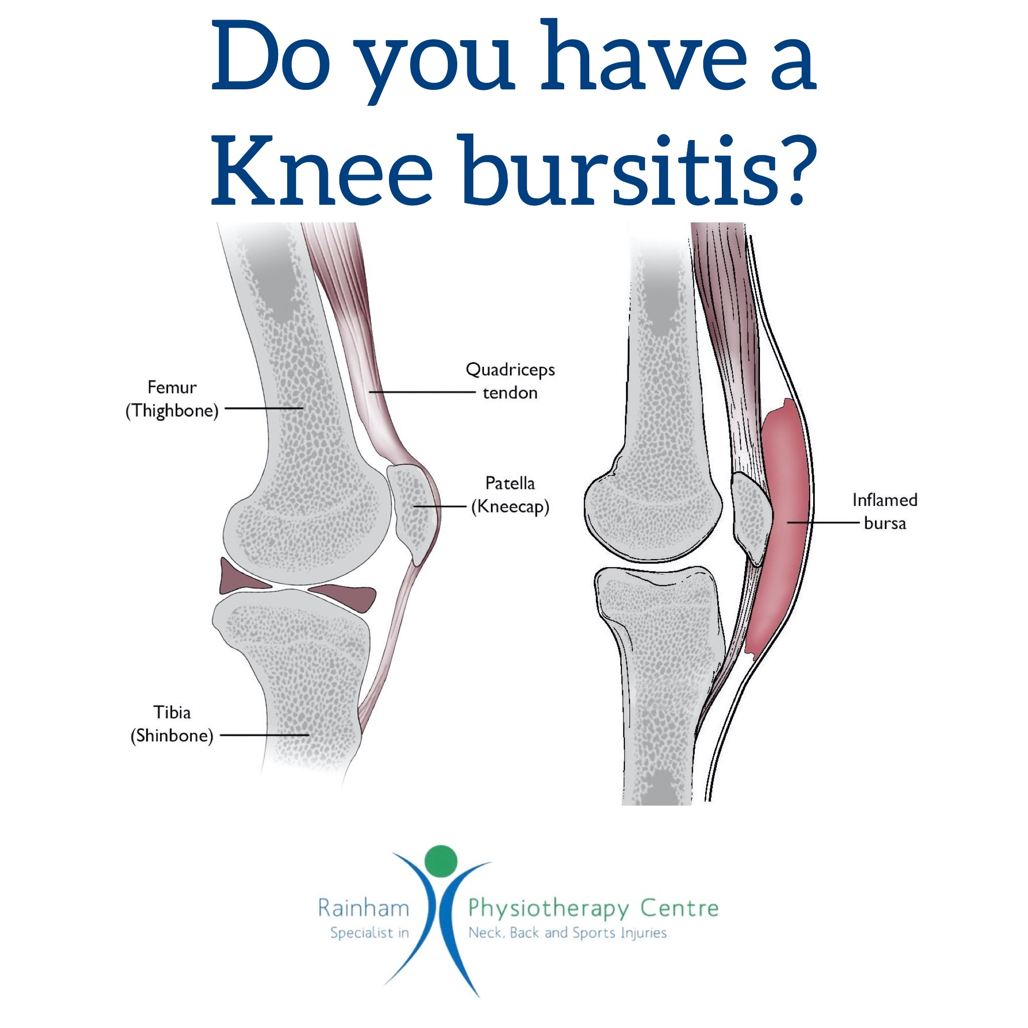 Do you have a knee bursitis?